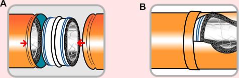 sistema de unión estanca